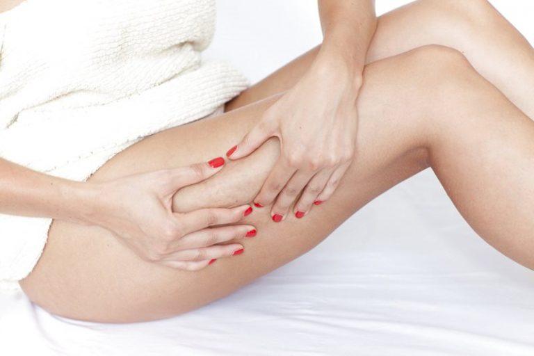 Rimedi naturali veloci per la cellulite: quali sono?
